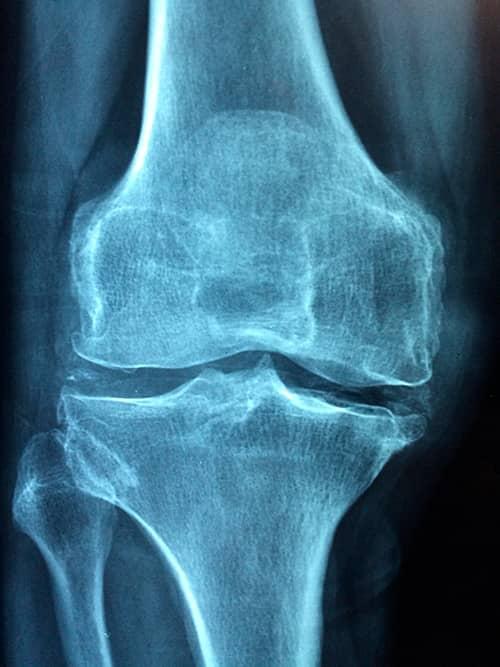 Articulaciones mayores con artrosis